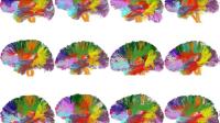 cerveau neuroludique